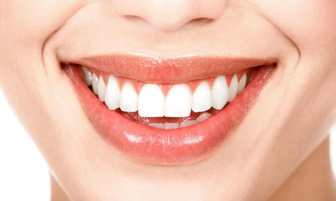 Końcówki do irygatorów Soocas W3 (Ortodontyczne)